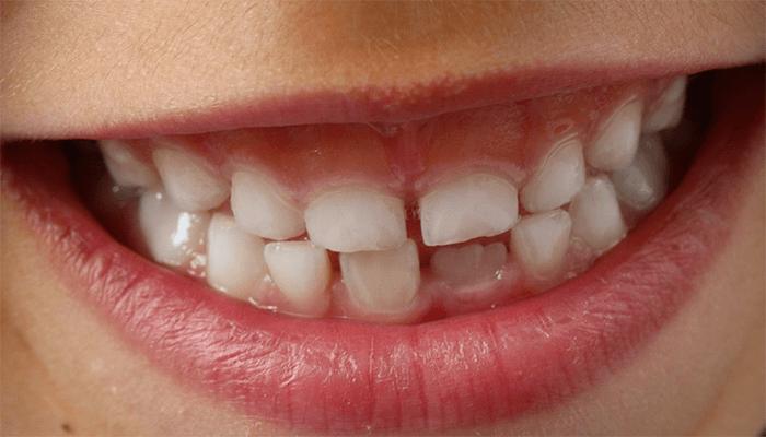 Вам приснилось что выпал зуб - что это означает по сонникам