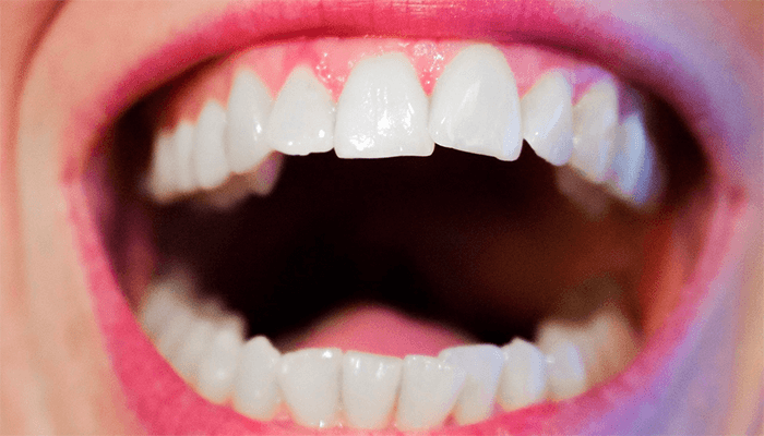 Вам приснилось что выпал зуб — что это означает по сонникам