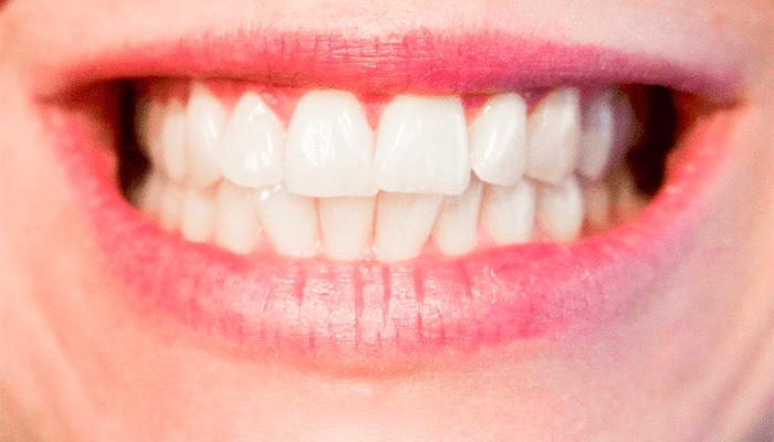 Передний зуб выпал во сне - к чему это снится по сонникам