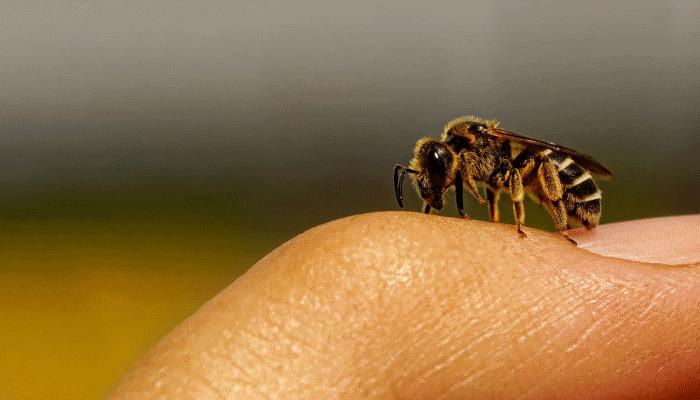 пчела-ужалила-во-сне